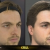 FIFA 15 Head Scan | Krul