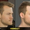 FIFA 15 Head Scan | Mignolet